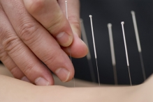 Tratament acupunctura