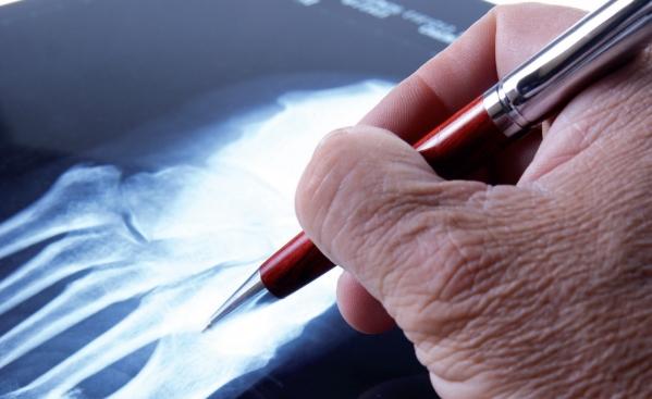 Poliartrita reumatoida - Analize de sange folosite in diagnostic