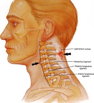 Discopatie cervicala