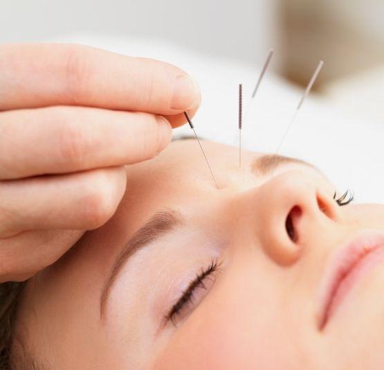 Pret sedinta acupunctura