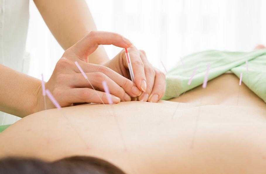 Carti acupunctura