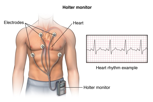 Holter EKG pret